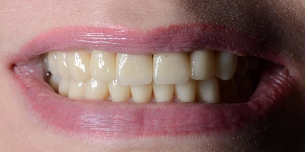 Фото после лечения Тотальная реконструкция улыбки с протезированием на имплантах безметалловыми короноками и винирами