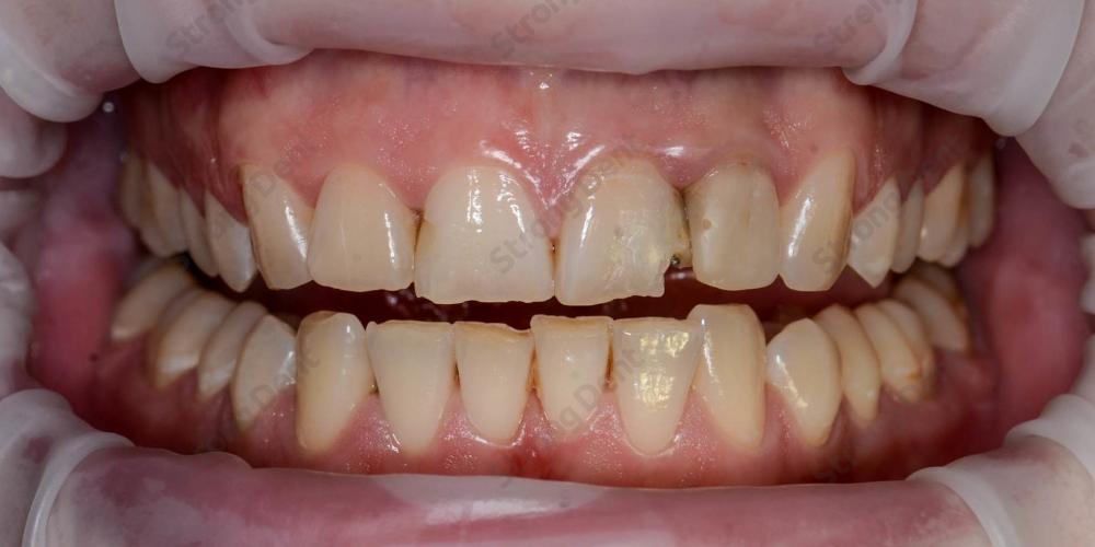 Результат установки высокоэстетичных виниров на передние зубы