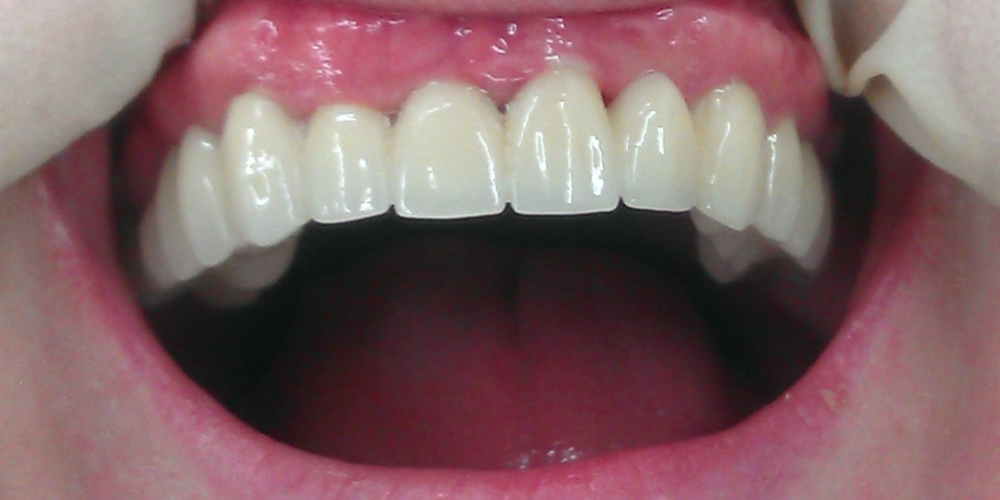 Металлокерамические коронки и мосты на верхнюю челюсть