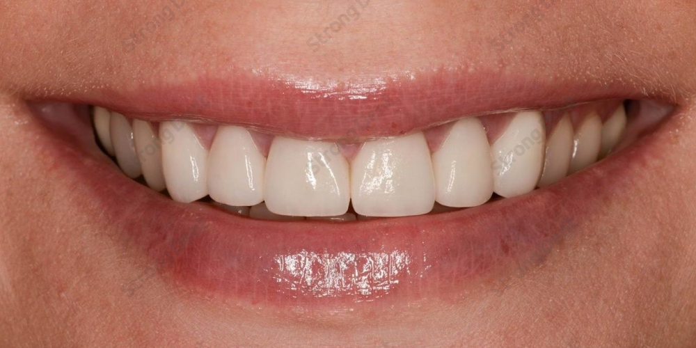 Результат протезирования верхней челюсти безметалловыми коронками