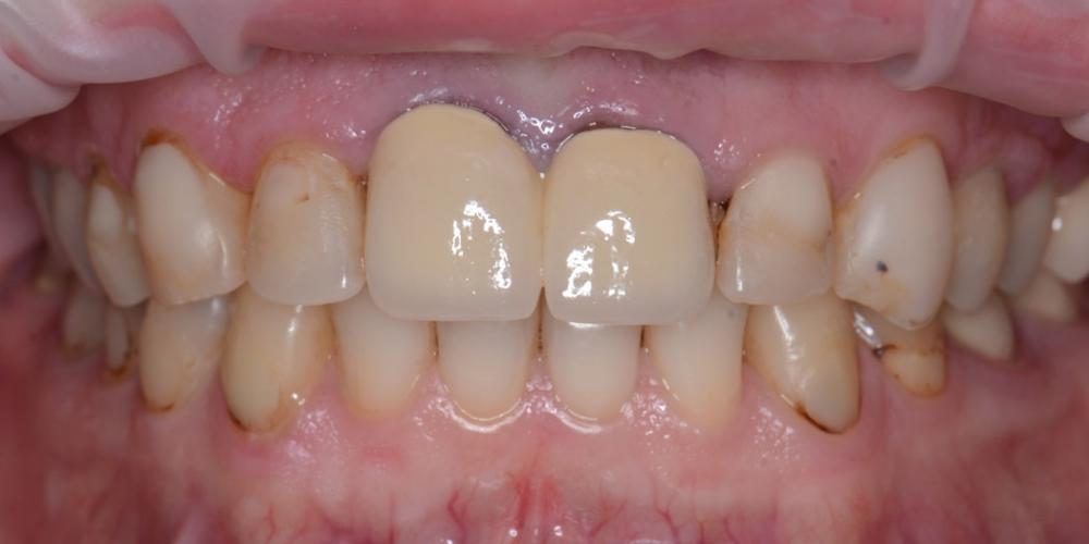 Фото до лечения Тотальная реконструкция улыбки с протезированием на имплантах безметалловыми короноками и винирами