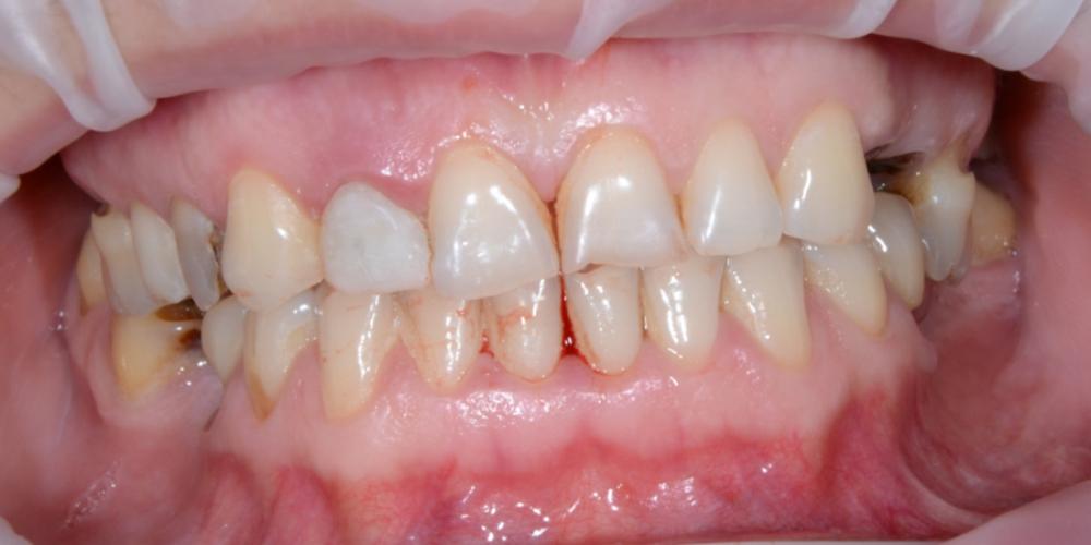 Реконструкция улыбки с установкой имплантатов и виниров