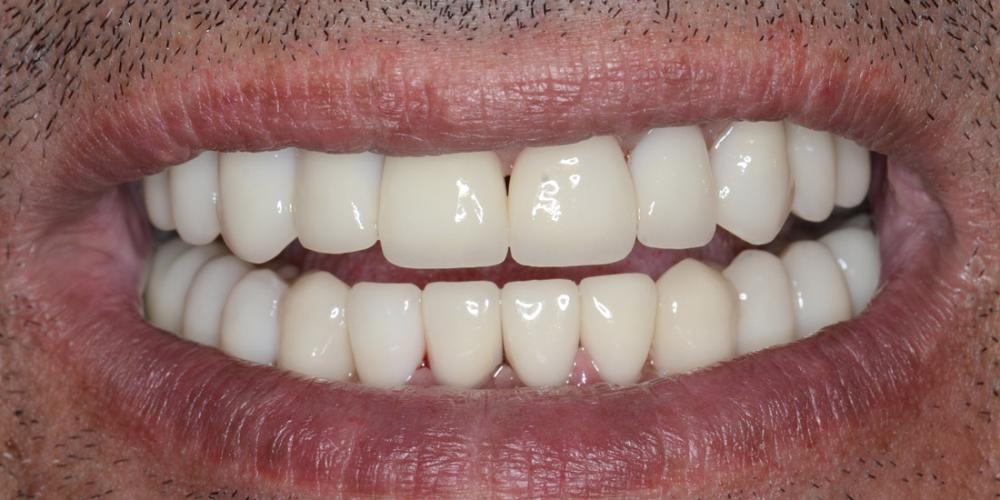После лечения Тотальная реконструкция улыбки и протезирование керамическими коронками