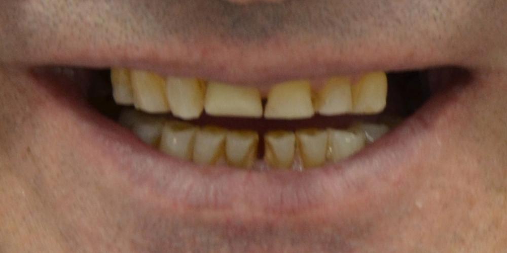 До лечения Тотальная реконструкция улыбки и протезирование керамическими коронками