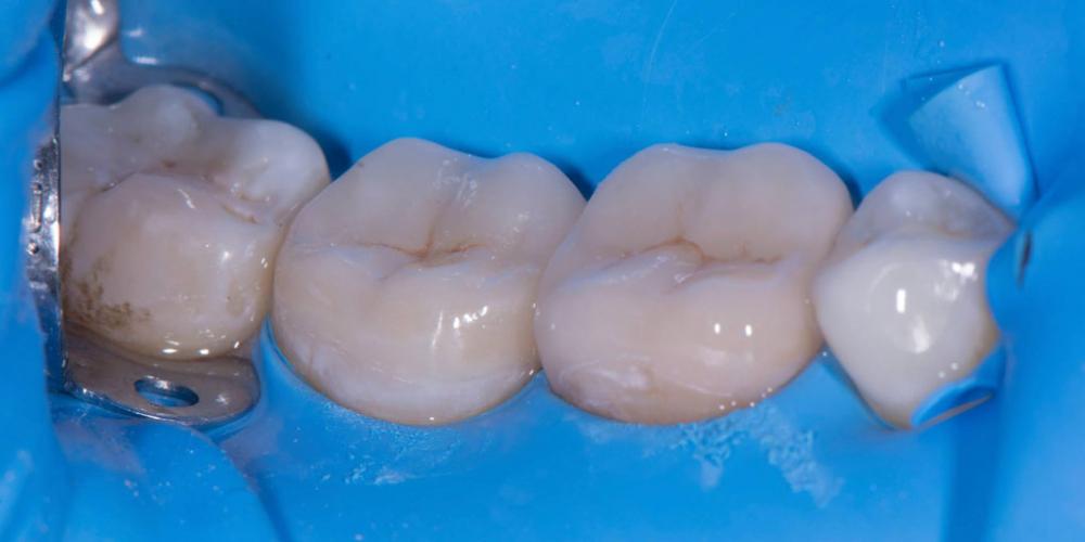 Восстановление двух зубов керамическими вкладками