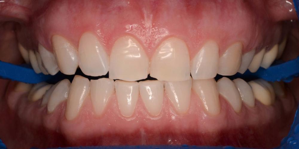 Отбеливание зубов системой ZOOM-4, результат до и после на фото
