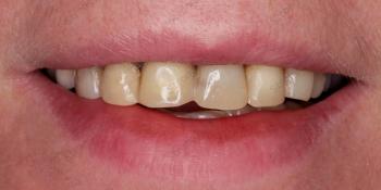 Фото до и после установки высокоэстетичных виниров фото до лечения