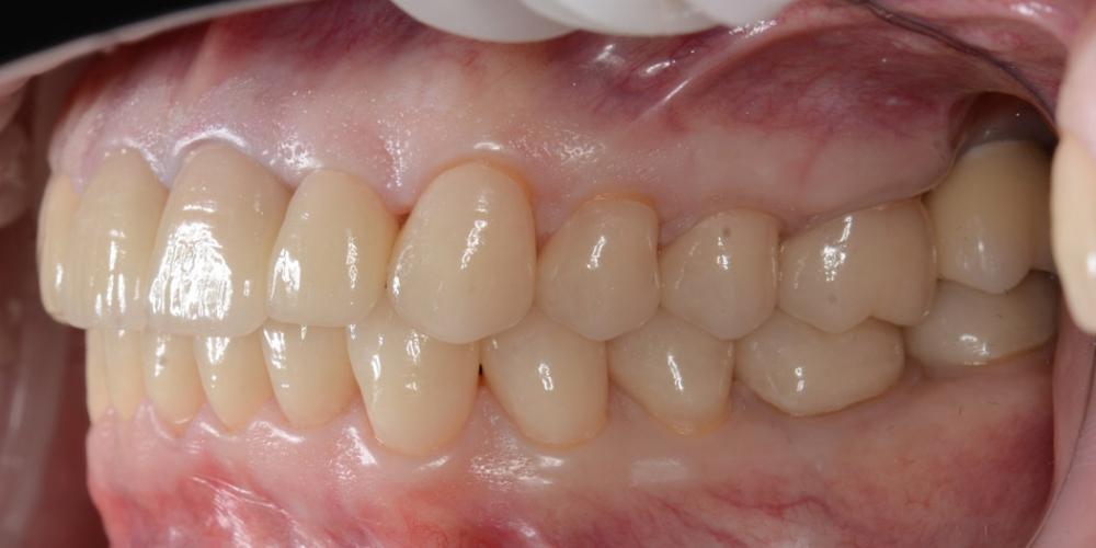 Фото после лечения, вед справа Тотальная реконструкция улыбки с протезированием на имплантах безметалловыми короноками и винирами