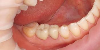 Протезирование металлокерамическими коронками фото после лечения