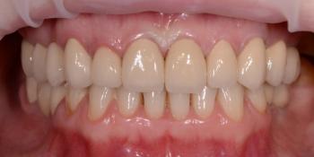 Реконструкция улыбки с установкой имплантатов и виниров фото после лечения