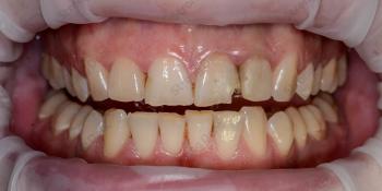 Результат установки высокоэстетичных виниров на передние зубы фото до лечения