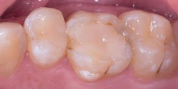 Жалобы на дефект пломбы, рецидив кариеса на контактных поверхностях фото до лечения