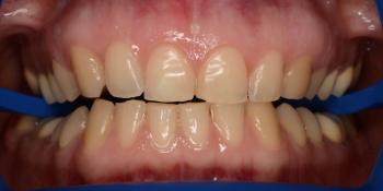Отбеливание зубов системой ZOOM-4, результат до и после на фото фото до лечения