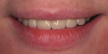 Фото до и после установки высокоэстетичных виниров фото после лечения