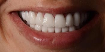 Тотальная реконструкция улыбки керамическими реставрациями фото после лечения