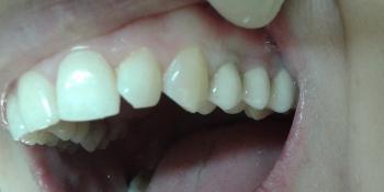Протезирование верхних зубов металлокерамическими коронками фото после лечения