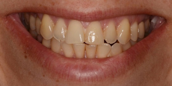 Тотальная реконструкция улыбки керамическими реставрациями фото до лечения