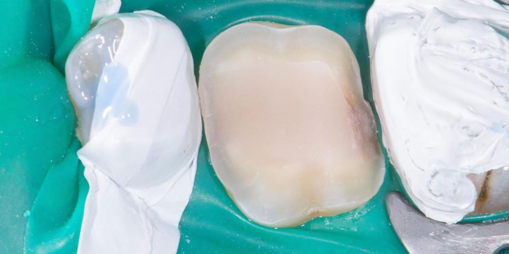 Жалобы на дефект пломбы, рецидив кариеса на контактных поверхностях