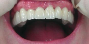 Металлокерамические коронки и мосты на верхнюю челюсть фото после лечения