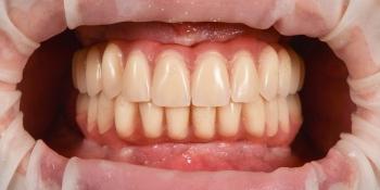 Имплантация при полной потере зубов, фото до и после фото после лечения