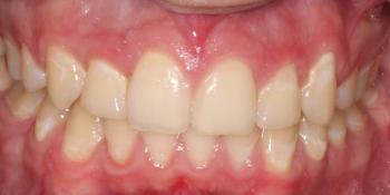 Результат исправления прикуса брекетами фото после лечения