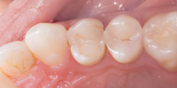 Реставрация зуба керамическим виниром в эстетически значимой зоне фото до лечения