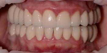 Тотальная реконструкция улыбки с установкой имплантатов и виниров фото после лечения
