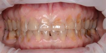 Реконструкция улыбки винирами, фото до и после фото до лечения