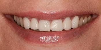 Результат протезирования верхней челюсти безметалловыми коронками фото после лечения