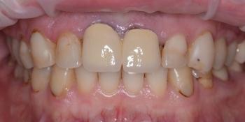Тотальная реконструкция улыбки с протезированием на имплантах безметалловыми короноками и винирами фото до лечения