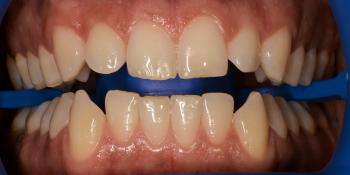 Результат отбеливания зубов системой ZOOM-4 фото до лечения