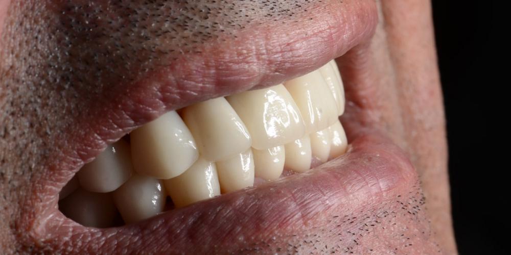 Красивая улыбка. Тотальная реконструкция улыбки и протезирование керамическими коронками