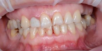 Реконструкция улыбки с установкой имплантатов и виниров фото до лечения