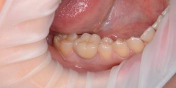 Имплантат с протезированием металлокерамической коронкой фото после лечения