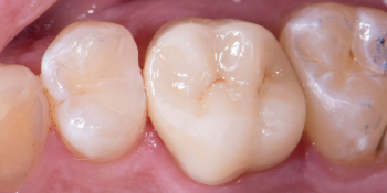 Жалобы на дефект пломбы, рецидив кариеса на контактных поверхностях фото после лечения