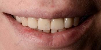 Результат установки высокоэстетичных виниров на передние зубы фото после лечения