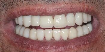 Тотальная реконструкция улыбки и протезирование керамическими коронками фото после лечения