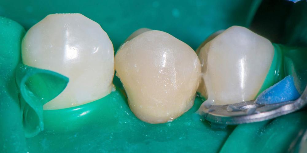 Реставрация зуба керамическим виниром в эстетически значимой зоне