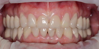 Реконструкция улыбки винирами, фото до и после фото после лечения