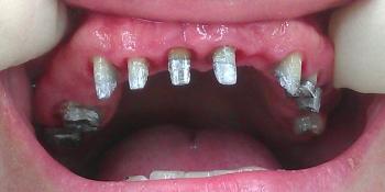 Металлокерамические коронки и мосты на верхнюю челюсть фото до лечения