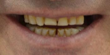 Тотальная реконструкция улыбки и протезирование керамическими коронками фото до лечения