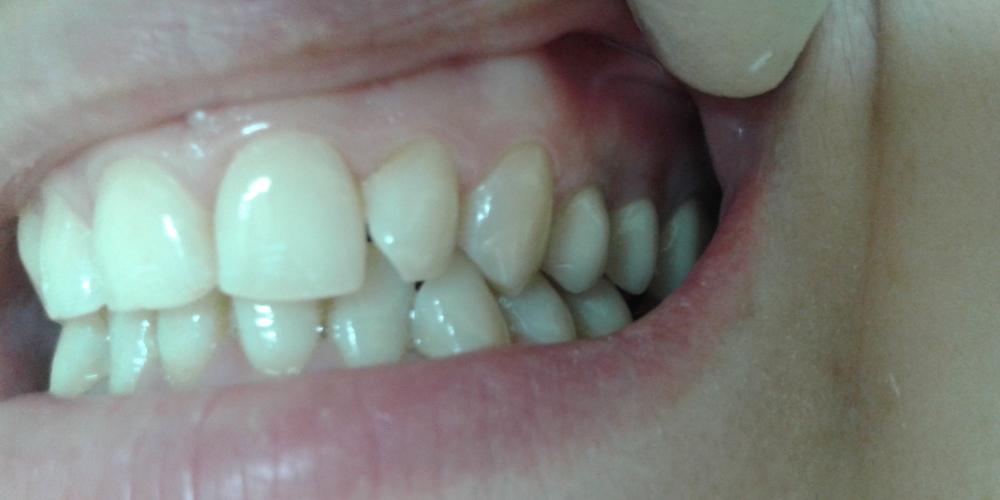 Протезирование верхних зубов металлокерамическими коронками