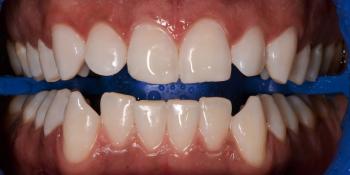 Результат отбеливания зубов системой ZOOM-4 фото после лечения