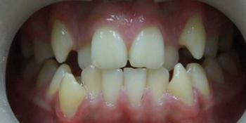 Исправление прикуса металлическими брекетами фото до лечения