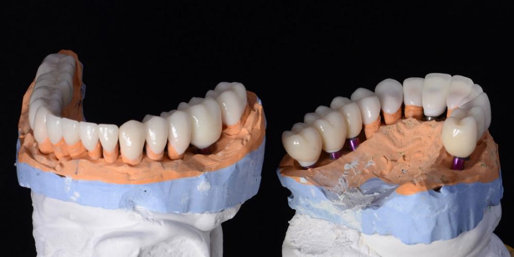 На фото керамические реставрации на диагностических моделях. Тотальная реконструкция улыбки и протезирование керамическими коронками