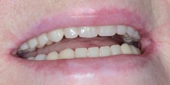 Протезирование верхней и нижней челюсти фото после лечения