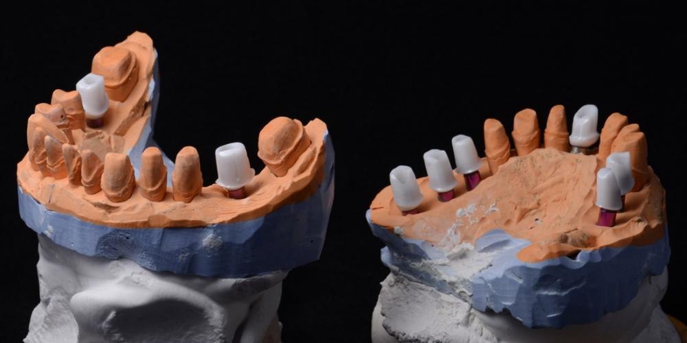 На фото диагностические модели. Тотальная реконструкция улыбки и протезирование керамическими коронками