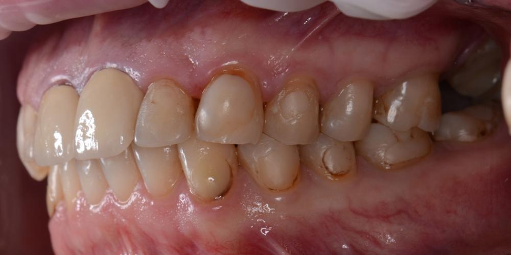 Фото до лечения, вед справа Тотальная реконструкция улыбки с протезированием на имплантах безметалловыми короноками и винирами