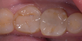 Восстановление двух зубов керамическими вкладками фото до лечения