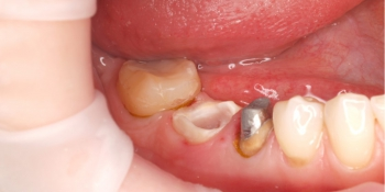 Протезирование металлокерамическими коронками фото до лечения